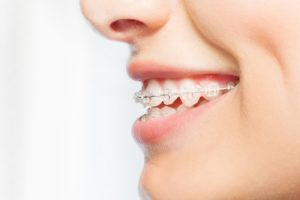Dental Wax: Your Sidekick in Living with Braces